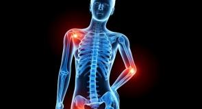 背中や臀部の痛みを改善・予防する4つの方法