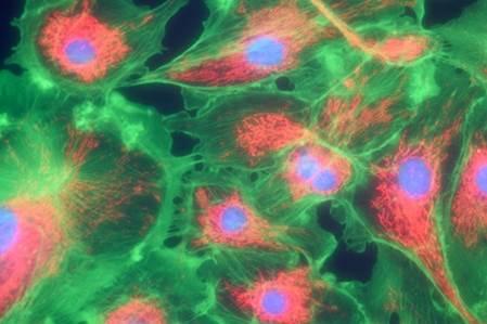 34302427 - microfilaments, mitochondria, and nuclei in fibroblast cells
