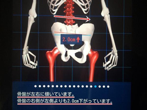 i-body 骨盤