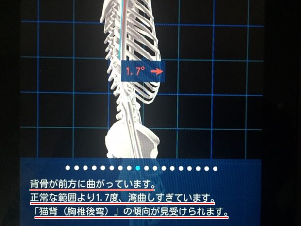 i-body 胸椎