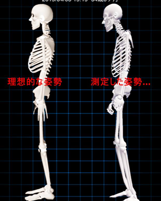 i-body 歪み診断結果